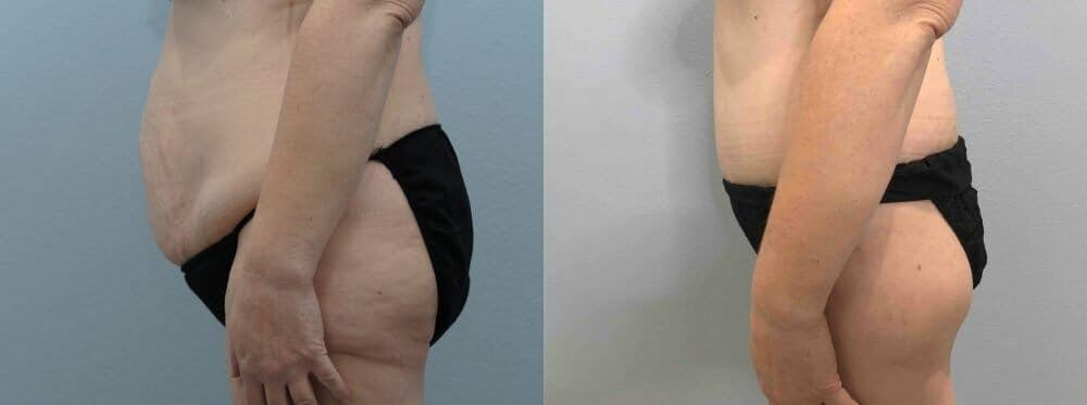 Tummy Tuck Gallery - Patient 47254049 - Image 6