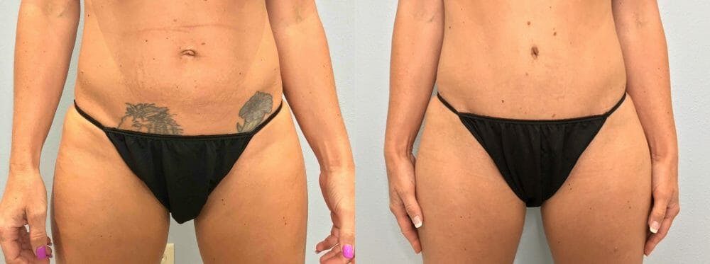 Tummy Tuck Gallery - Patient 47254063 - Image 1