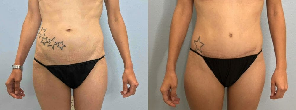 Tummy Tuck Gallery - Patient 47254067 - Image 1