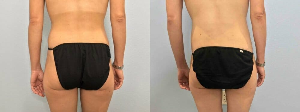 Tummy Tuck Gallery - Patient 47254067 - Image 2