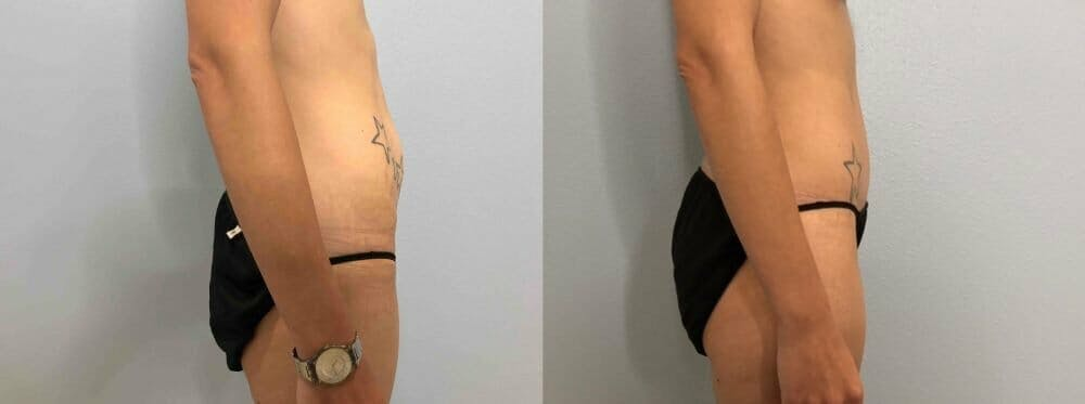 Tummy Tuck Gallery - Patient 47254067 - Image 4