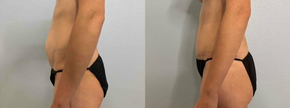 Tummy Tuck Gallery - Patient 47254067 - Image 5