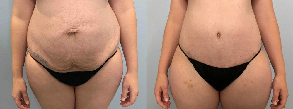Tummy Tuck Gallery - Patient 47254070 - Image 1