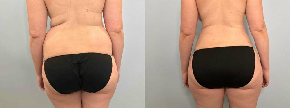 Tummy Tuck Gallery - Patient 47254070 - Image 2