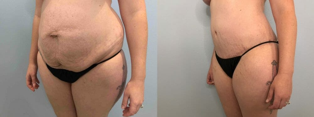 Tummy Tuck Gallery - Patient 47254070 - Image 5
