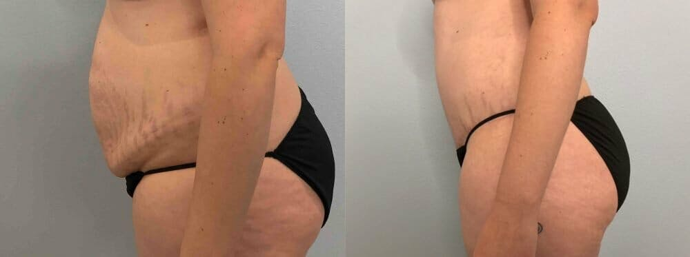 Tummy Tuck Gallery - Patient 47254070 - Image 6