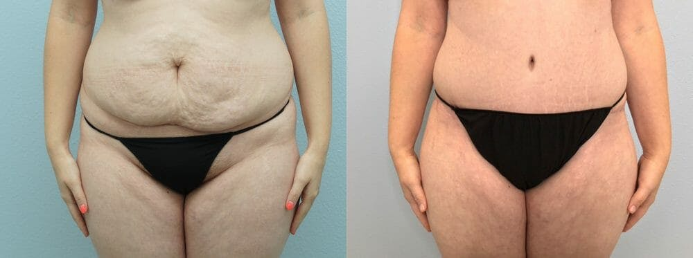 Tummy Tuck Gallery - Patient 47254071 - Image 1