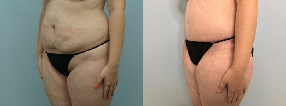 Tummy Tuck Gallery - Patient 47254071 - Image 3