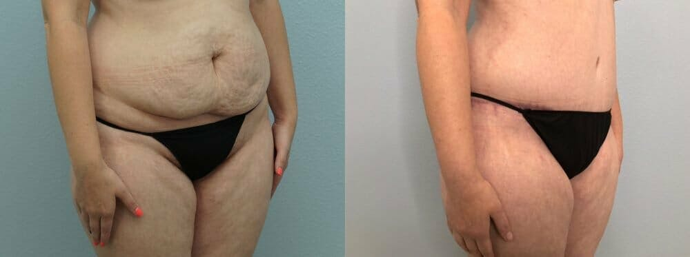 Tummy Tuck Gallery - Patient 47254071 - Image 5