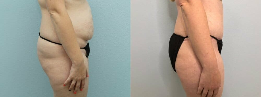 Tummy Tuck Gallery - Patient 47254071 - Image 6