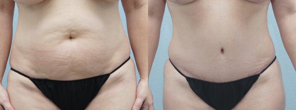 Tummy Tuck Gallery - Patient 47254074 - Image 1
