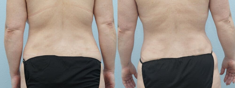 Tummy Tuck Gallery - Patient 47254074 - Image 2