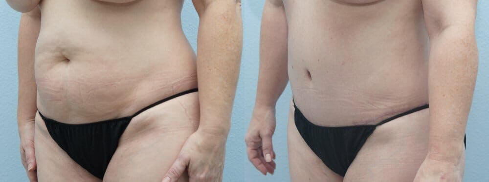Tummy Tuck Gallery - Patient 47254074 - Image 3