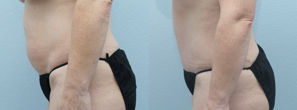 Tummy Tuck Gallery - Patient 47254074 - Image 4