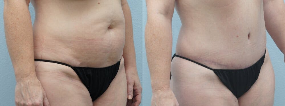 Tummy Tuck Gallery - Patient 47254074 - Image 5