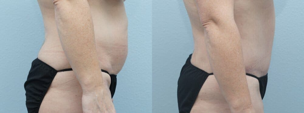 Tummy Tuck Gallery - Patient 47254074 - Image 6
