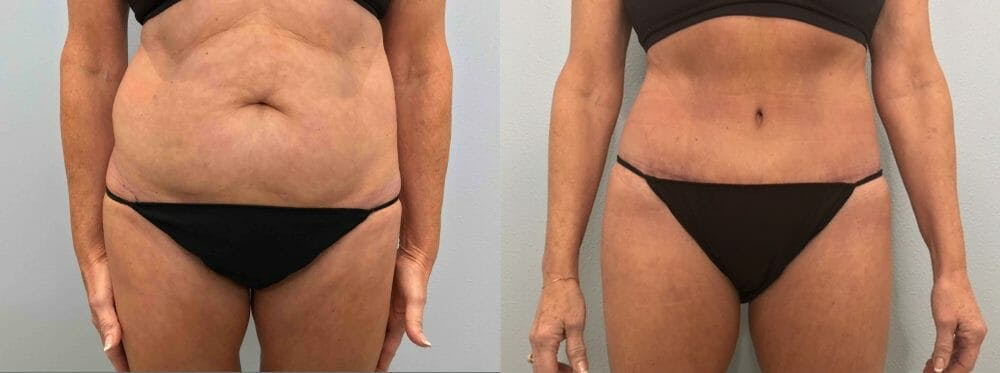 Tummy Tuck Gallery - Patient 47254077 - Image 1