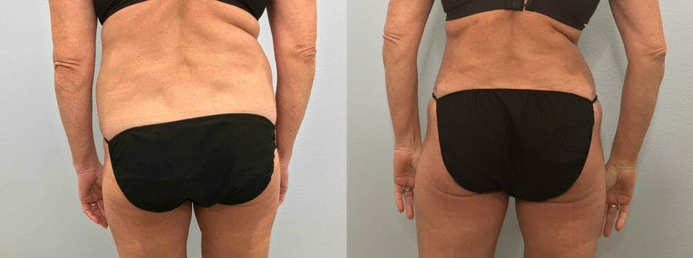 Tummy Tuck Gallery - Patient 47254077 - Image 2