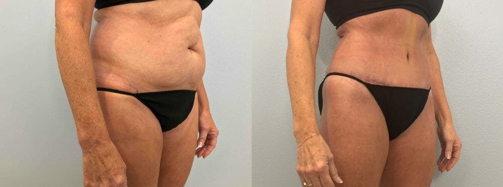 Tummy Tuck Gallery - Patient 47254077 - Image 3