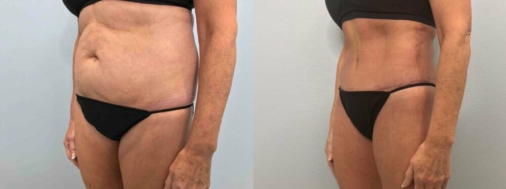 Tummy Tuck Gallery - Patient 47254077 - Image 4
