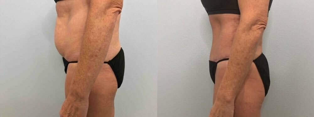 Tummy Tuck Gallery - Patient 47254077 - Image 5