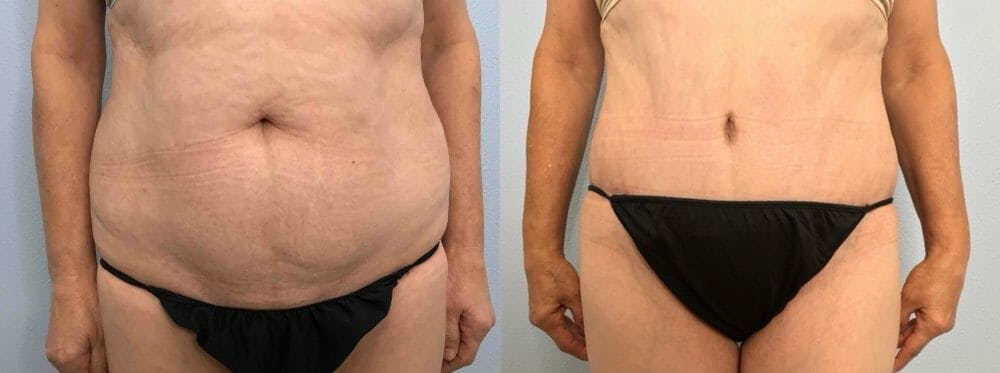 Tummy Tuck Gallery - Patient 47254079 - Image 1