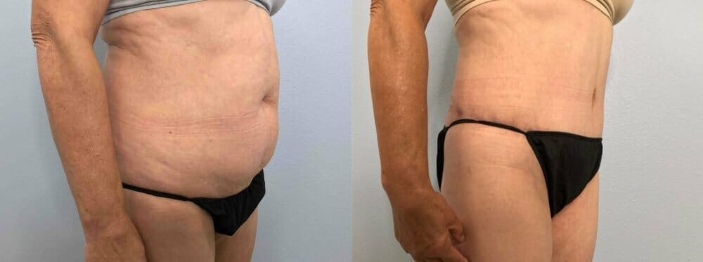 Tummy Tuck Gallery - Patient 47254079 - Image 2