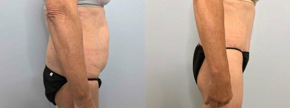Tummy Tuck Gallery - Patient 47254079 - Image 3