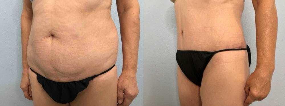 Tummy Tuck Gallery - Patient 47254079 - Image 4