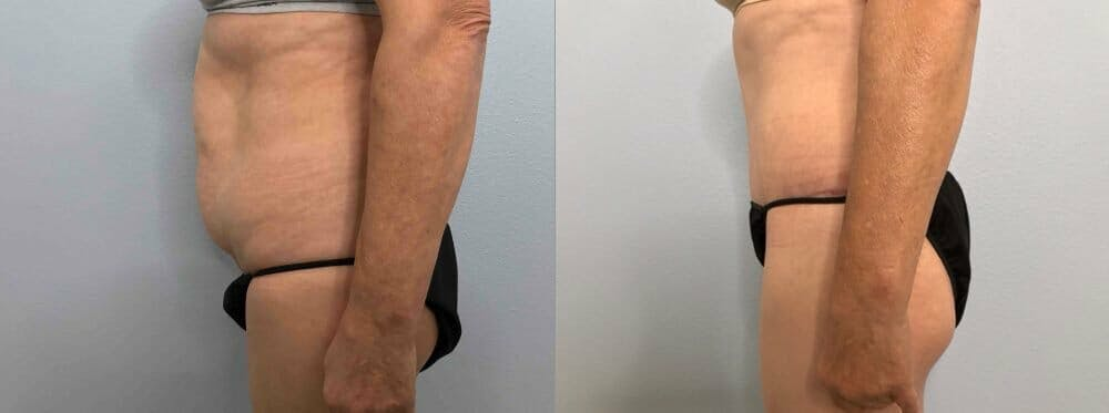 Tummy Tuck Gallery - Patient 47254079 - Image 5