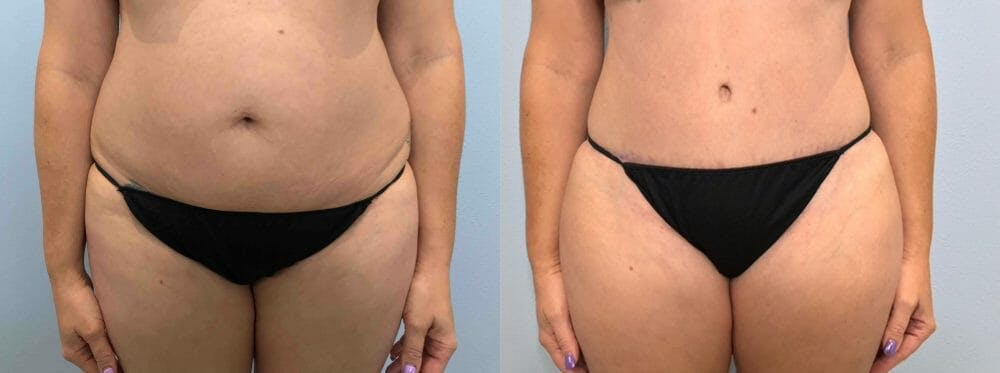 Tummy Tuck Gallery - Patient 47254087 - Image 1