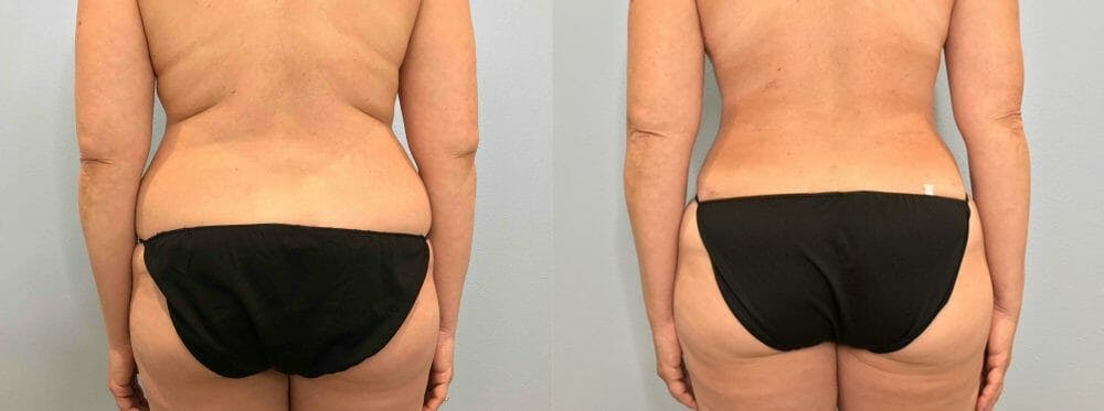 Tummy Tuck Gallery - Patient 47254087 - Image 2