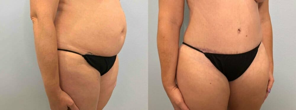 Tummy Tuck Gallery - Patient 47254087 - Image 3