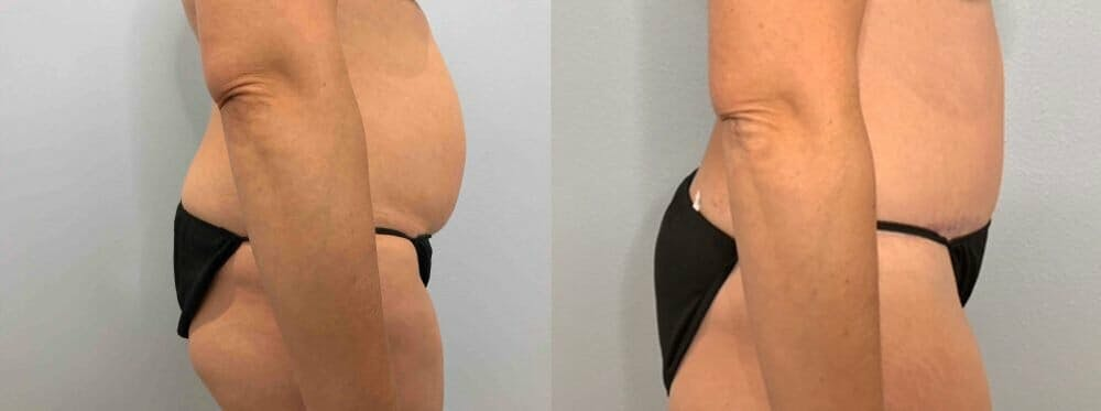 Tummy Tuck Gallery - Patient 47254087 - Image 4