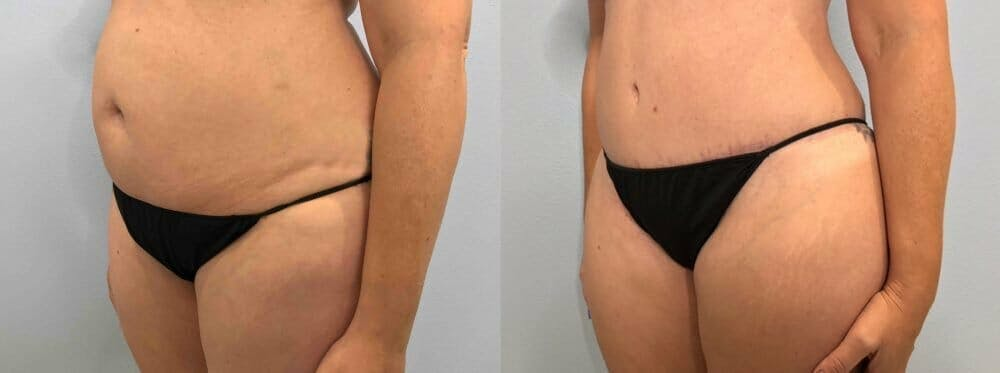 Tummy Tuck Gallery - Patient 47254087 - Image 5