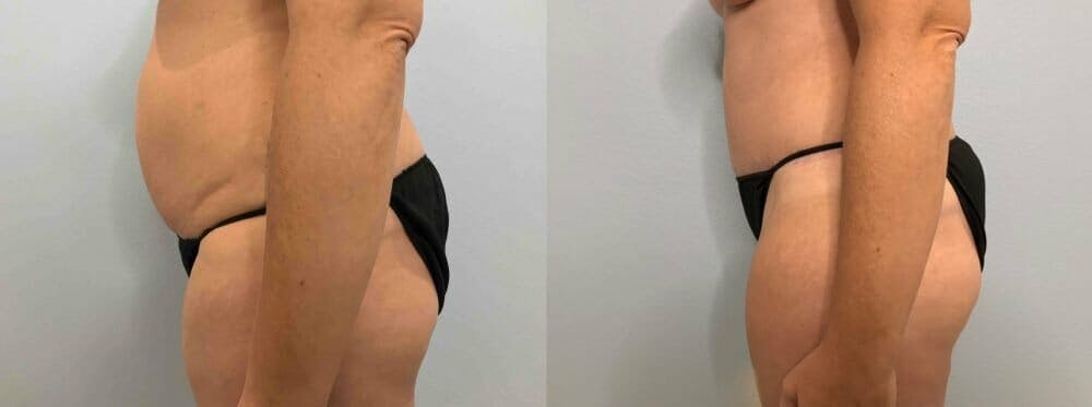 Tummy Tuck Gallery - Patient 47254087 - Image 6