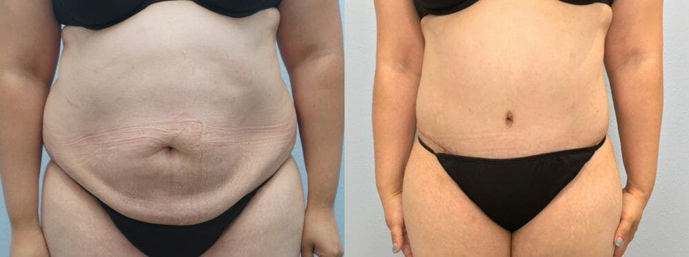 Tummy Tuck Gallery - Patient 47254093 - Image 1