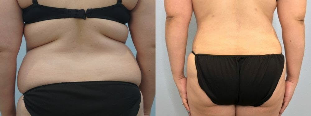 Tummy Tuck Gallery - Patient 47254093 - Image 2