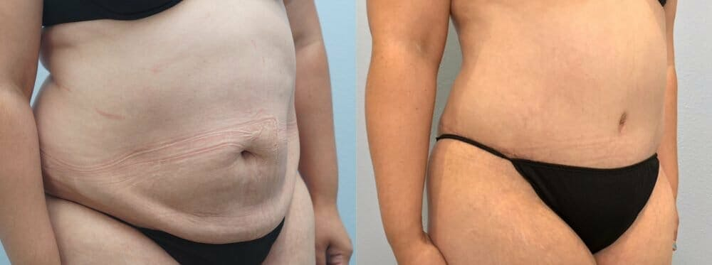 Tummy Tuck Gallery - Patient 47254093 - Image 3