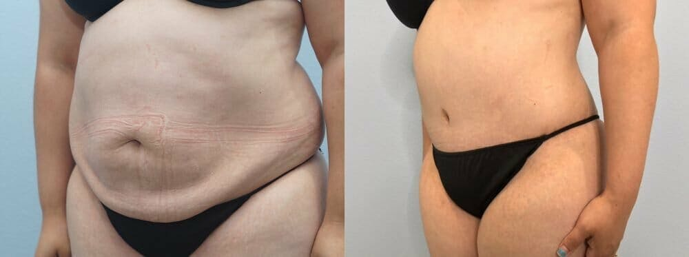 Tummy Tuck Gallery - Patient 47254093 - Image 5