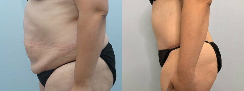 Tummy Tuck Gallery - Patient 47254093 - Image 6