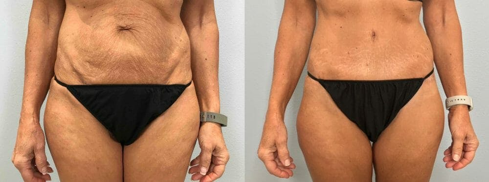 Tummy Tuck Gallery - Patient 47254099 - Image 1