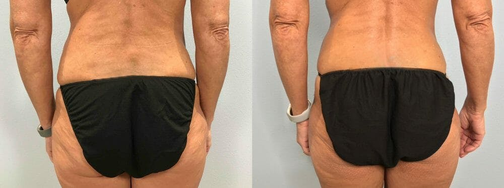 Tummy Tuck Gallery - Patient 47254099 - Image 2
