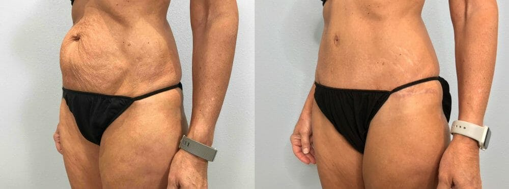 Tummy Tuck Gallery - Patient 47254099 - Image 3