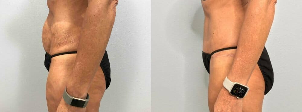 Tummy Tuck Gallery - Patient 47254099 - Image 4