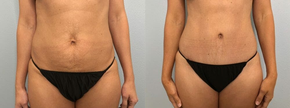 Tummy Tuck Gallery - Patient 47254153 - Image 1