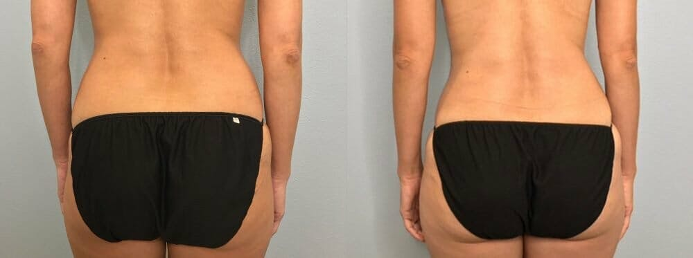 Tummy Tuck Gallery - Patient 47254153 - Image 2