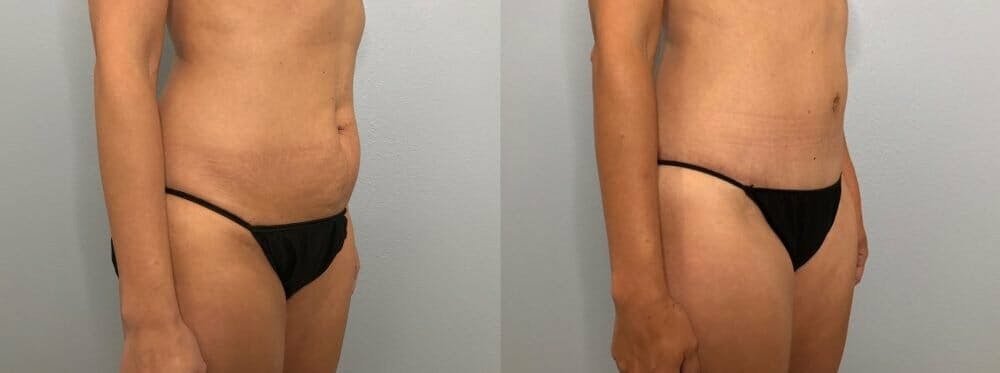 Tummy Tuck Gallery - Patient 47254153 - Image 3
