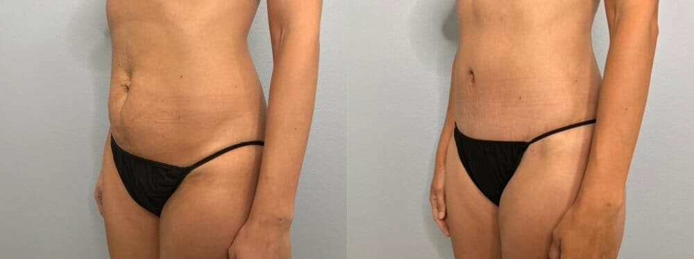 Tummy Tuck Gallery - Patient 47254153 - Image 5