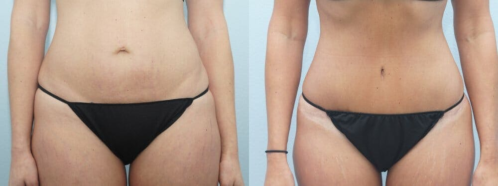 Tummy Tuck Gallery - Patient 47254372 - Image 1
